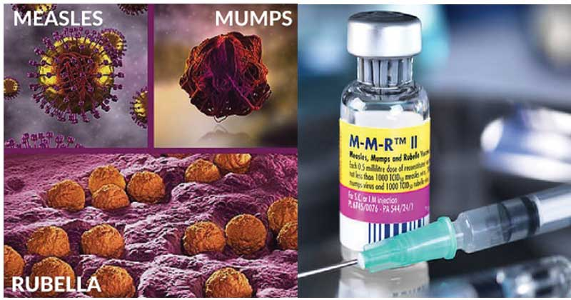 Measles, Mumps, Rubella (MMR) and MMR Vaccine