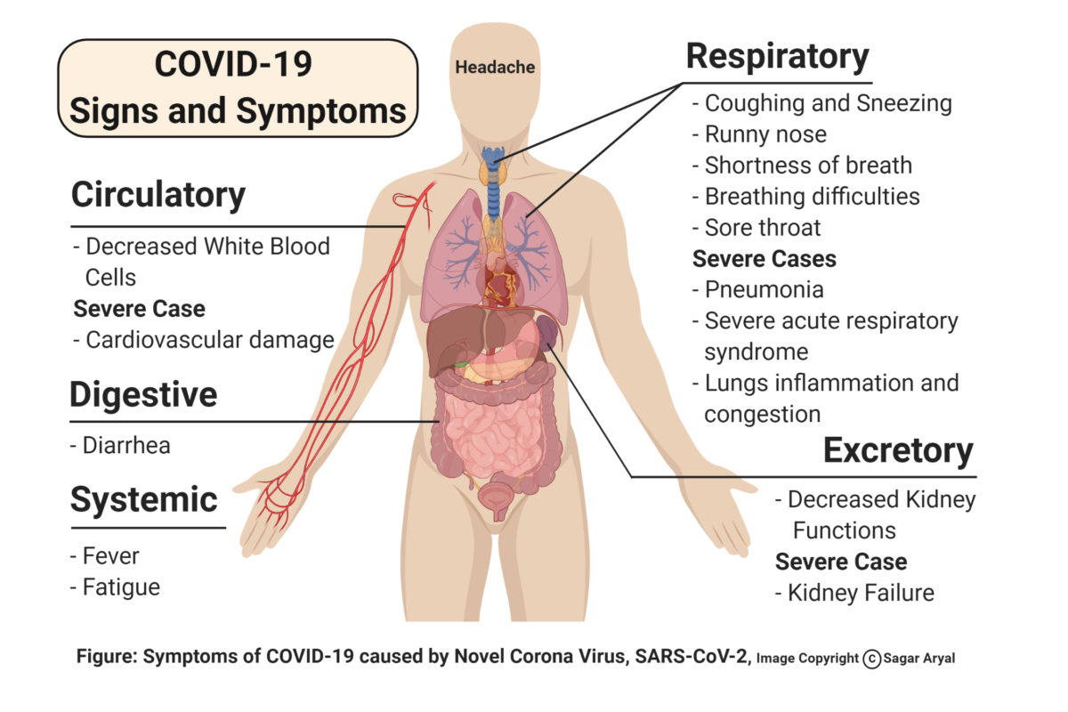 COVID-19 (disease caused by SARS-CoV-2) Signs and Symptoms