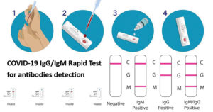 COVID-19 IgG-IgM Rapid Test for antibodies detection