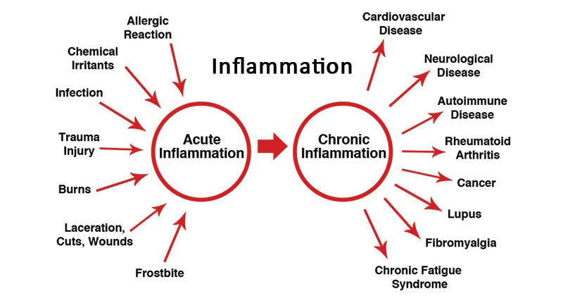 Types of inflammation