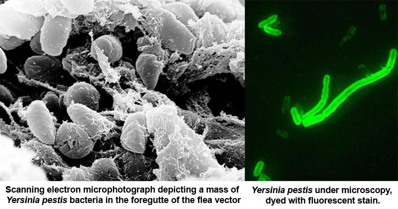 Plague and its forms caused by Yersinia pestis