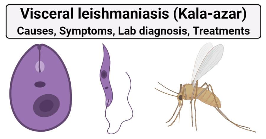 Visceral leishmaniasis (Kala-azar)