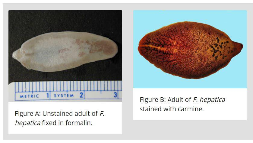Adult Worm- Morphology of Fasciola hepatica
