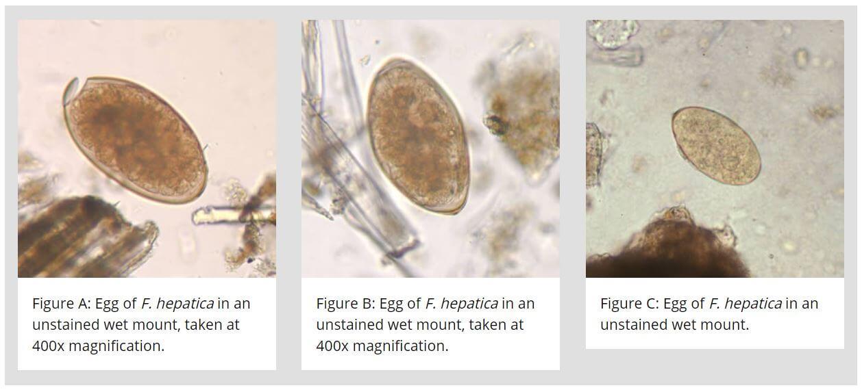 Eggs- Morphology of Fasciola hepatica