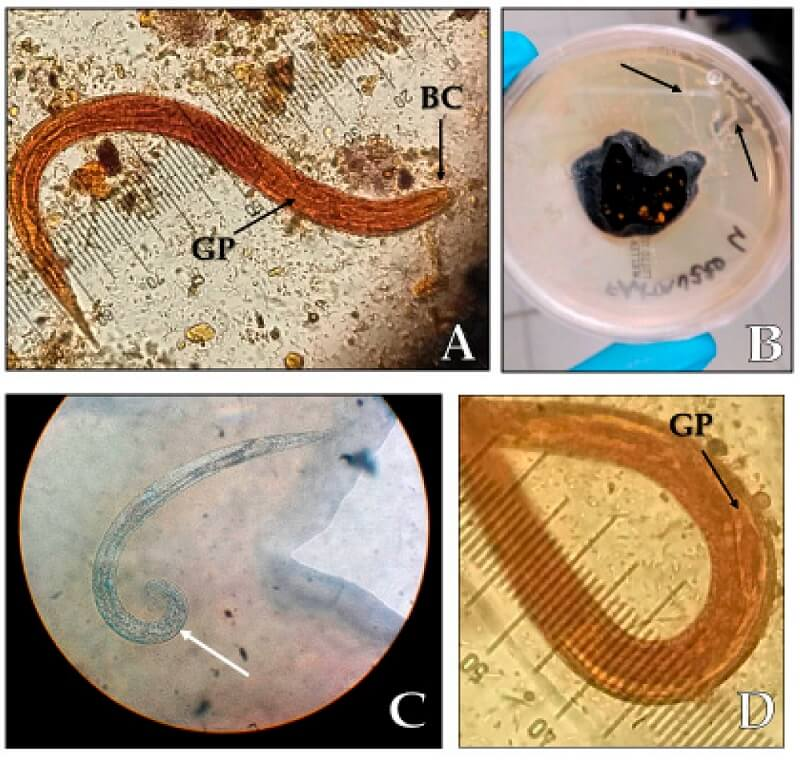 Laboratory diagnosis of Strongyloides stercoralis
